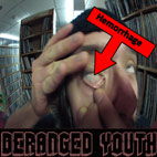 Deranged Youth: Hemorrhage [EP]